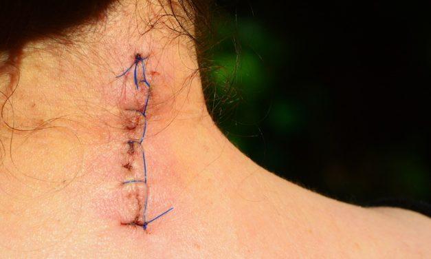 Važnost rehabilitacije ožiljka nakon operativnog zahvata